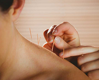 Acupuncture treatment being applied to the shoulder as part of a comprehensive approach to pain management.